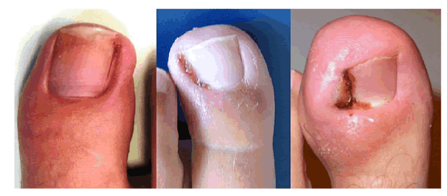 Three stages of ingrown toenails