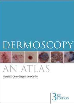 Dermoscopy: an atlas 3e