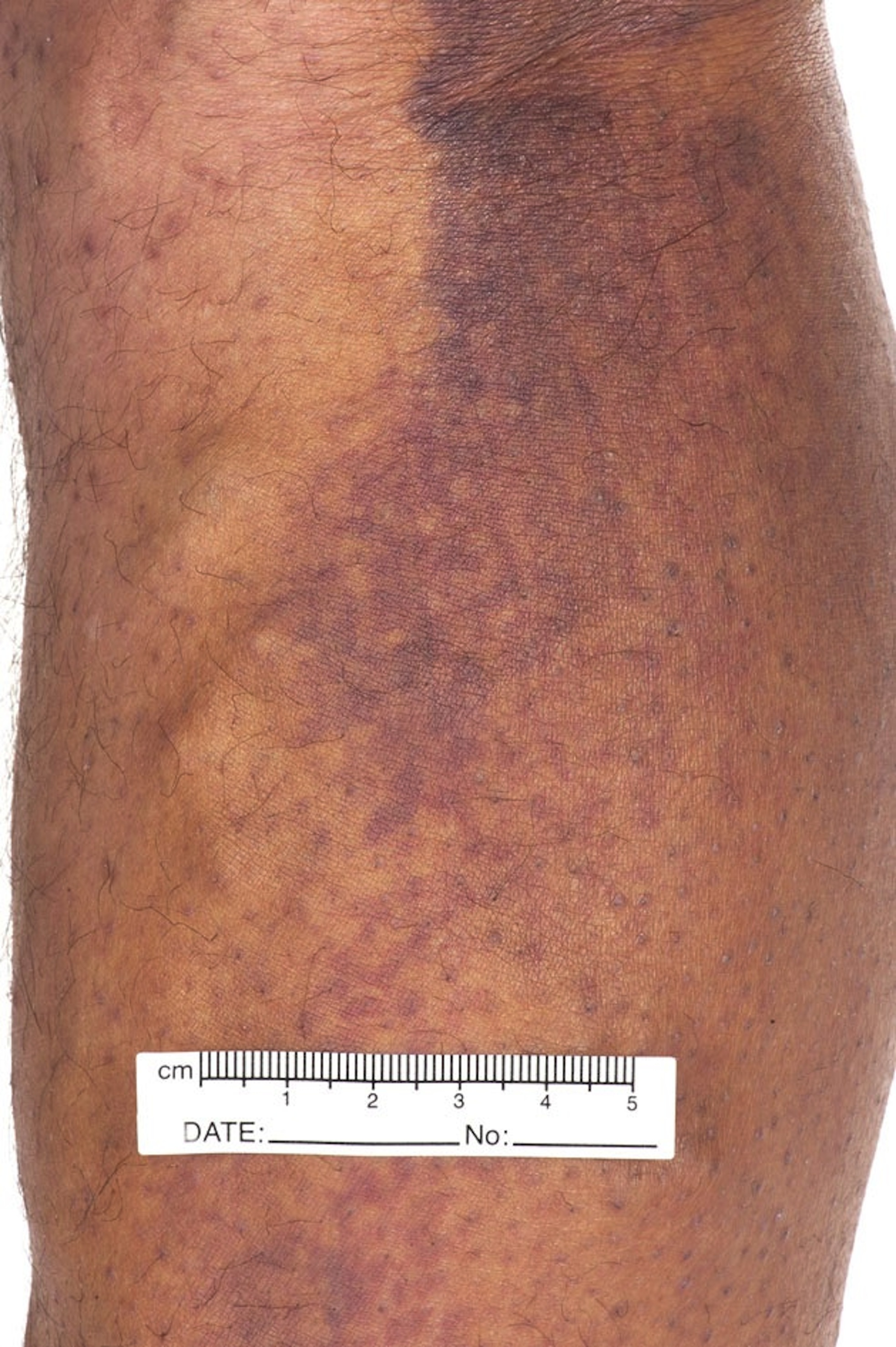 RACGP - A rare cause of petechial rash in the 21st century