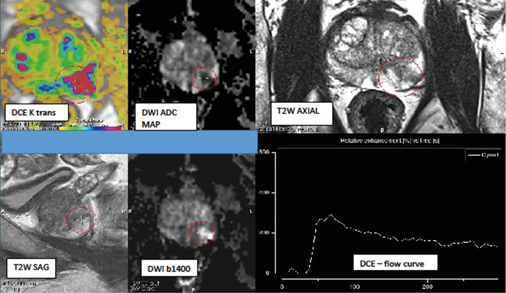 RACGP - Multiparametric MRI in the diagnosis of prostate cancer – a