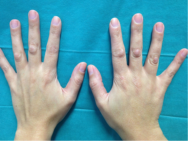 RACGP , Enlarging knuckle bumps
