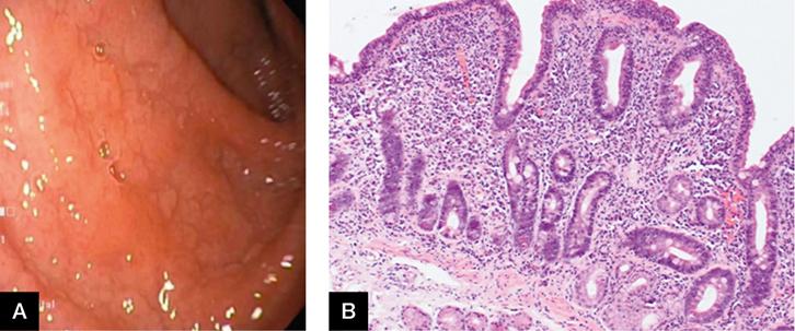 RACGP - A GP primer for understanding upper gastrointestinal