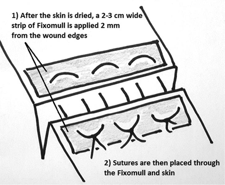 RACGP - Wound closure involving fragile skin
