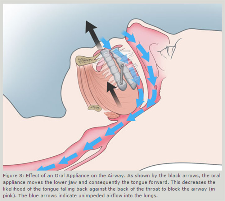 Effect of Oral Appliance on the airway