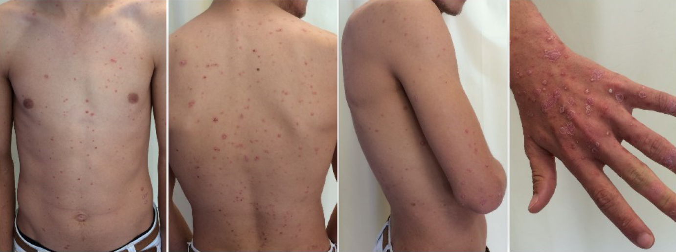 Racgp Widespread Rash After Throat Infection