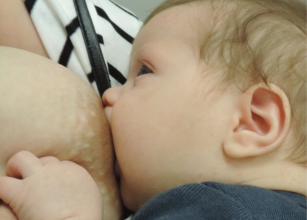 Racgp Overcoming Challenges Faced By Breastfeeding Mothers