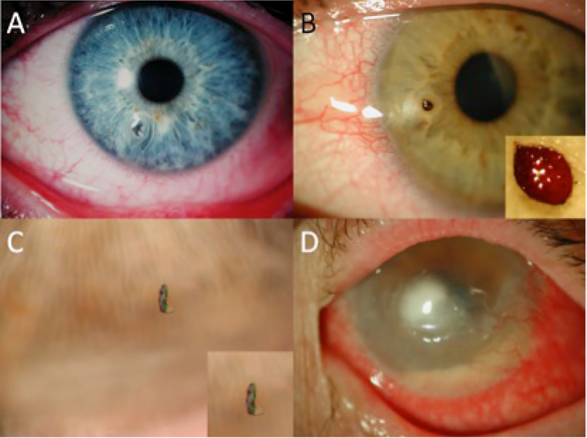 RACGP - Managing corneal foreign bodies in office-based