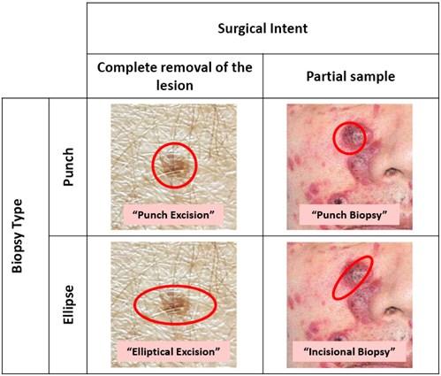 Racgp Skin Biopsy In The Diagnosis Of Neoplastic Skin Disease