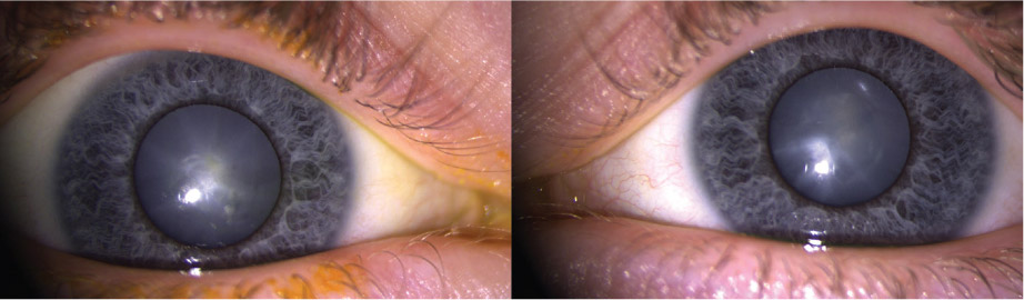 Figure 1 Appearance Of The Patients Right And Left Eyes